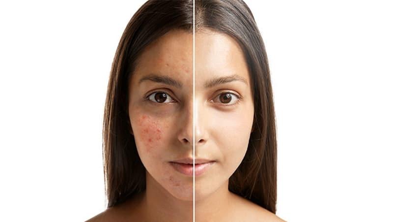 Acne Treatment Elite Md