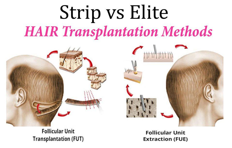Elite Hair Restoration Methods